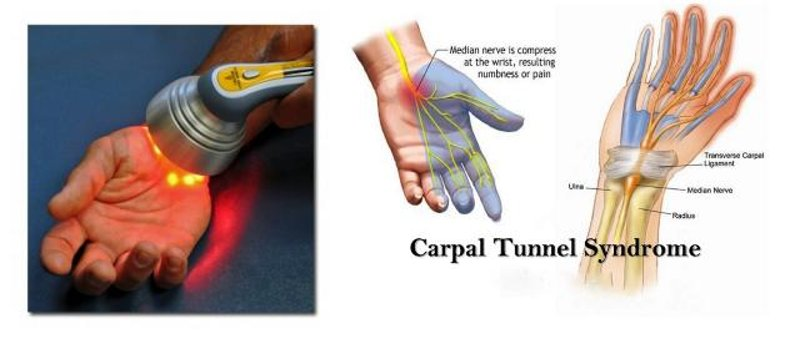 Carpal Tunnel and Non Invasive Low Level Laser Therapy Treatment
