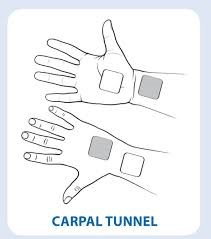 TENs Electrode Placement for Carpal Tunnel