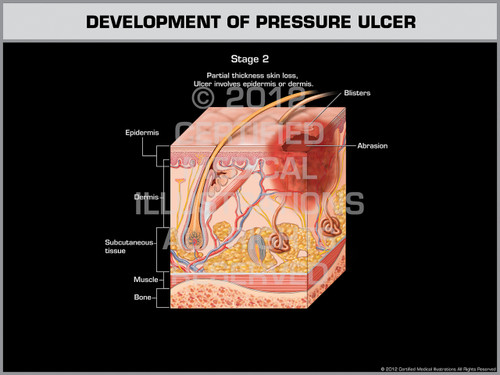 Exhibit of Development of Pressure Ulcer - Stage 2