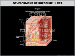 Exhibit of Development of Pressure Ulcer - Stage 3