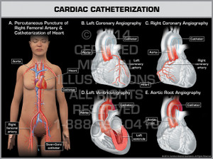 Exhibit of Cardiac Catheterization Female