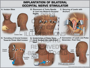 Exhibit of Implantation of Bilateral Occipital Nerve Stimulator