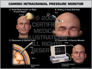 Exhibit of Camino Intracranial Pressure Monitor Male