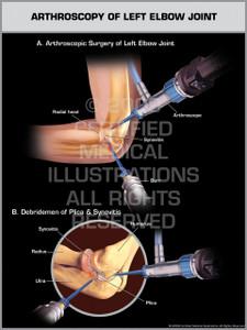 Arthroscopy of Left Elbow Joint