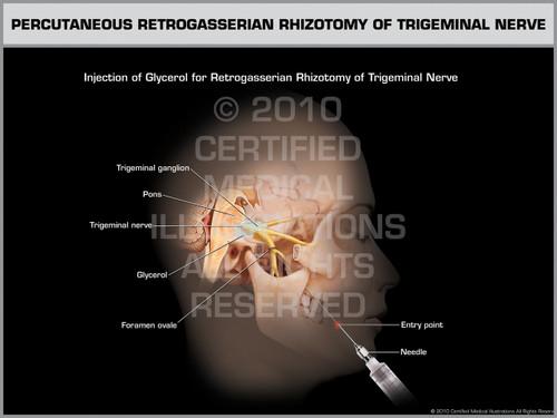 Exhibit of Percutaneous Retrogasserian Rhizotomy of Trigeminal Nerve Female