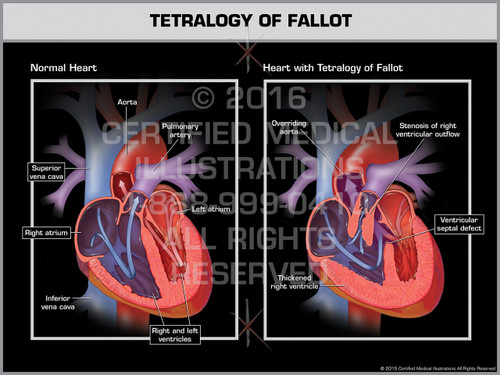 Exhibit of Tetralogy of Fallot - Print Quality Instant Download