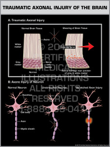 Exhibit of Traumatic Axonal Injury of the Brain