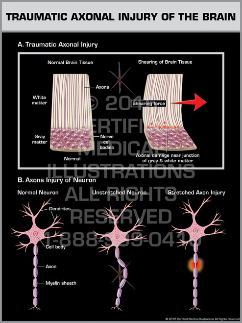 Exhibit of Traumatic Axonal Injury of the Brain - Print Quality Instant Download