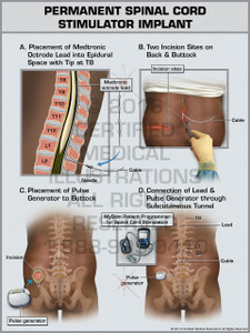 Exhibit of Permanent Spinal Cord Stimulator Implant - Print Quality Instant Download