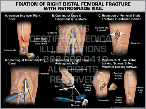 Exhibit of Fixation of Right Distal Femoral Fracture with Retrograde Nail - Print Quality Instant Download