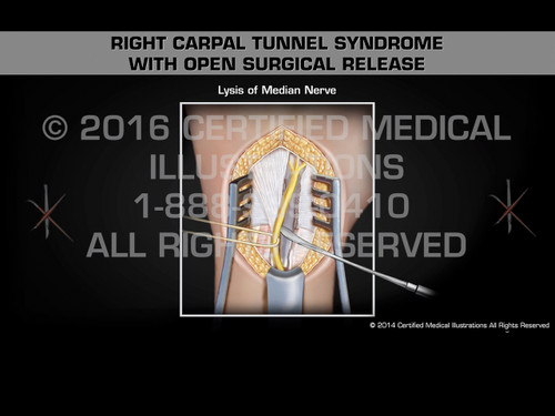 Animation of Right Carpal Tunnel Syndrome with Open Surgical Release - Medical Animation