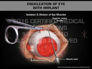 Animation of Enucleation of Eye with Implant - Medical Animation