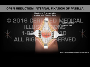 Animation of Open Reduction Internal Fixation of Patella - Medical Animation