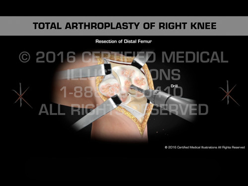 Animation of Total Arthroplasty of Right Knee