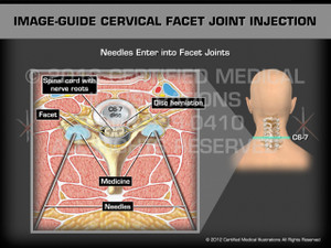 Animation of Image-Guide Cervical Facet Joint Injection - Medical Animation