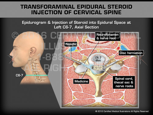 Animation of Transforaminal Epidural Steroid Injection of Cervical Spine - Medical Animation
