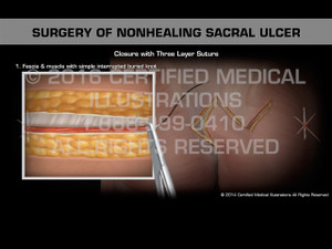 Animation of Surgery of Nonhealing Sacral Ulcer - Medical Animation