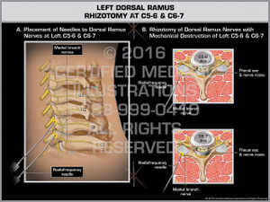 Exhibit of Left Dorsal Ramus Rhizotomy at C5-6 & C6-7