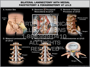 Exhibit of Bilateral Laminectomy with Medial Facetectomy & Foraminotomy at L2-L5