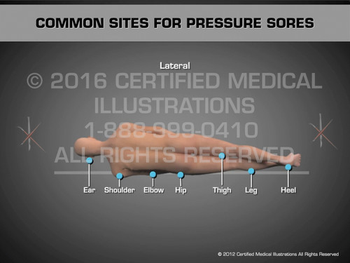 Animation of Common Sites for Pressure Sores - Medical Animation