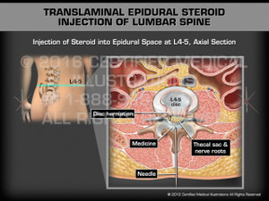 Animation of Translaminal Epidural Steroid Injection of Lumbar Spine - Medical Animation (Male)