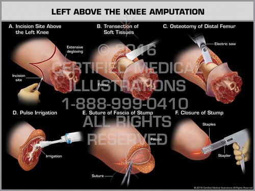 Exhibit of Left Above the Knee Amputation