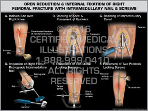 Exhibit of Open Reduction & Internal Fixation of Right Femoral Fracture with Intramedullary Nail & Screws