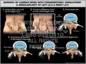 Exhibit of Surgery of Lumbar Spine with Foraminotomy, Annulotomy & Annuloplasty at Left L2-3 & Right L3-4 - Print Quality Instant Download