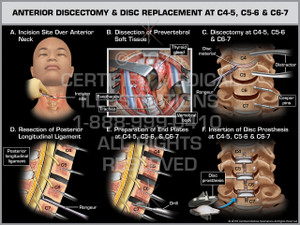 Exhibit of Anterior Discectomy & Disc Replacement at C4-5, C5-6 & C6-7