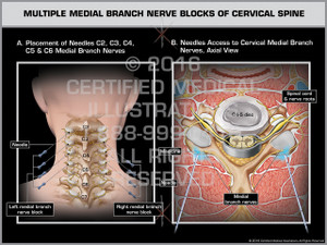 Exhibit of Multiple Medial Branch Nerve Blocks of Cervical Spine - Print Quality Instant Download
