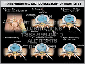 Exhibit of Transforaminal Microdiscectomy of Right L5-S1 - Print Quality Instant Download