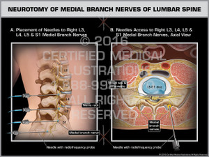 Exhibit of Neurotomy of Medial Branch Nerves of Lumbar Spine - Print Quality Instant Download