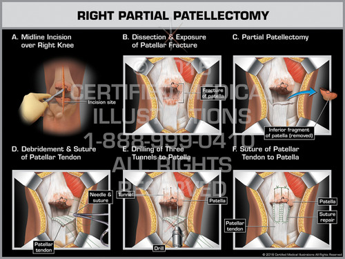 Exhibit of Right Partial Patellectomy - Print Quality Instant Download