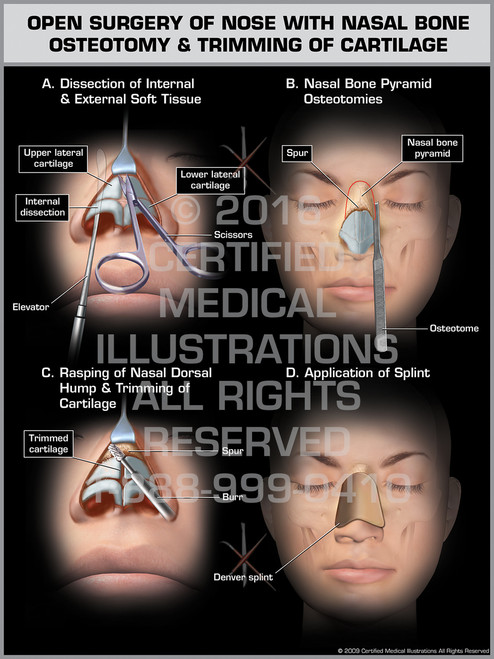 Exhibit of Open Surgery of Nose with Nasal Bone Osteotomy & Trimming of Cartilage - Print Quality Instant Download