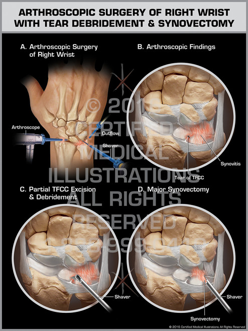 Exhibit of Arthroscopic Surgery of Right Wrist with Tear Debridement & Synovectomy - Print Quality Instant Download