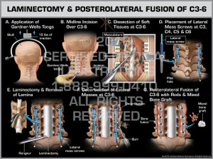 Exhibit of Laminectomy & Posterolateral Fusion of C3-6