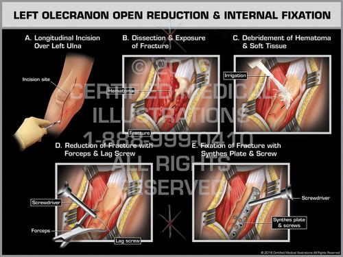 Exhibit of Left Olecranon Open Reduction & Internal Fixation