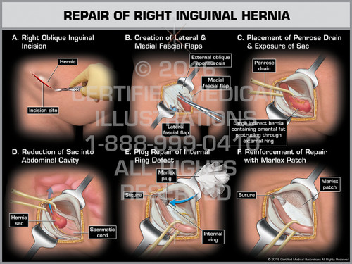 Exhibit of Repair of Right Inguinal Hernia - Print Quality Instant Download