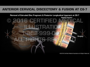 Animation of Anterior Cervical Discectomy & Fusion at C6-7 - Medical Animation