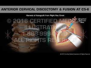 Animation of Anterior Cervical Discectomy & Fusion at C5-6 - Medical Animation