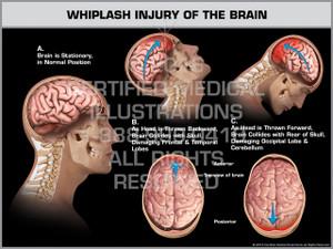 Exhibit of Whiplash Injury of the Brain