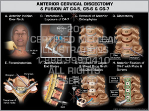 Exhibit of Anterior Cervical Discectomy & Fusion at C4-5, C5-6 & C6-7