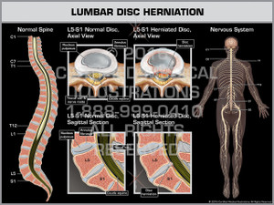 Exhibit of Lumbar Disc Herniation - Print Quality Instant Download
