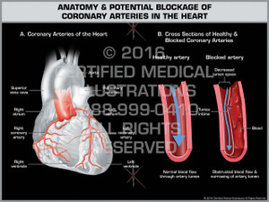 Exhibit of Anatomy & Potential Blockage of Coronary Arteries in the Heart - Print Quality Instant Download