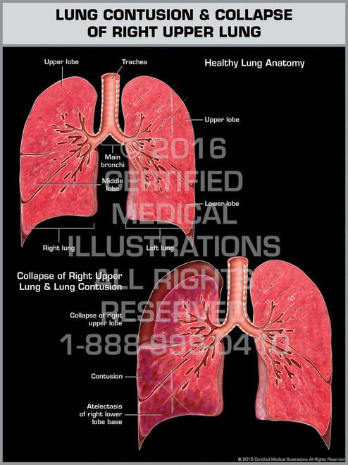 Exhibit of Lung Contusion & Collapse of Right Upper Lung