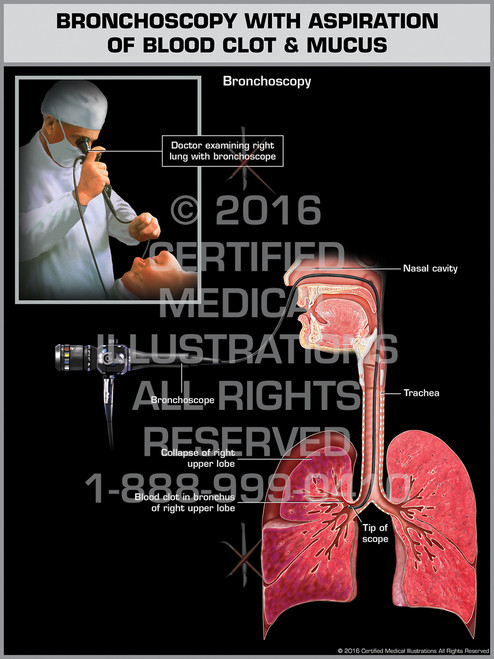 Exhibit of Bronchoscopy with Aspiration of Blood Clot & Mucus - Print Quality Instant Download
