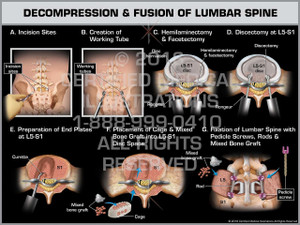 Exhibit of Decompression & Fusion of Lumbar Spine