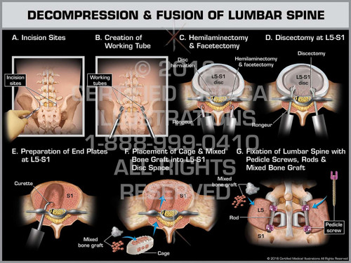 Exhibit of Decompression & Fusion of Lumbar Spine - Print Quality Instant Download