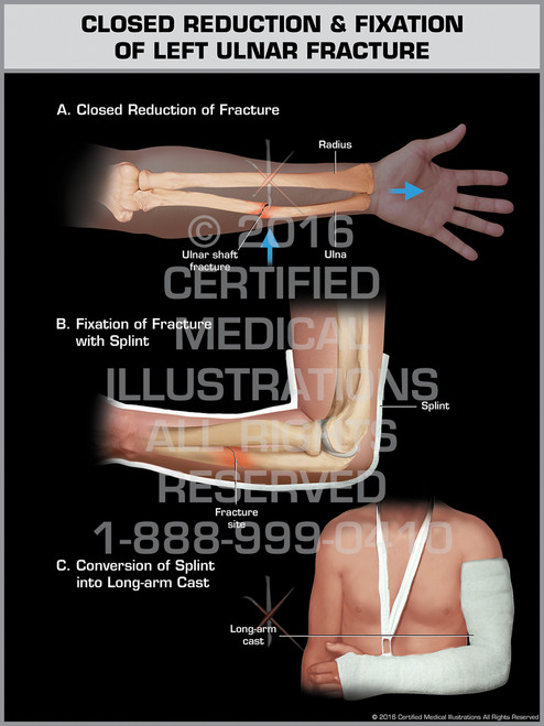 Exhibit of Closed Reduction & Fixation of Left Ulnar Fracture