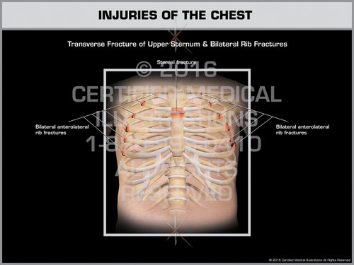 Exhibit of Injuries of the Chest - Print Quality Instant Download